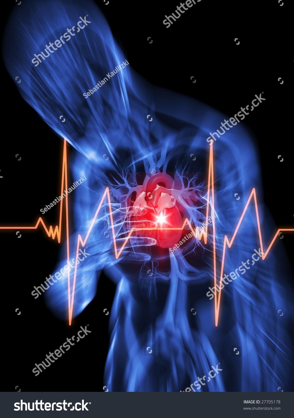 心脏病发作-医疗保健,插图/剪贴图-海洛创意(hellorf)图片